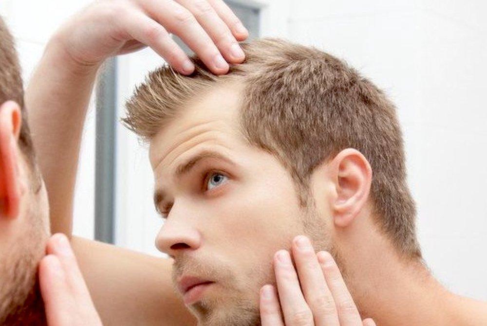 calvizie trapianto dei capelli revised