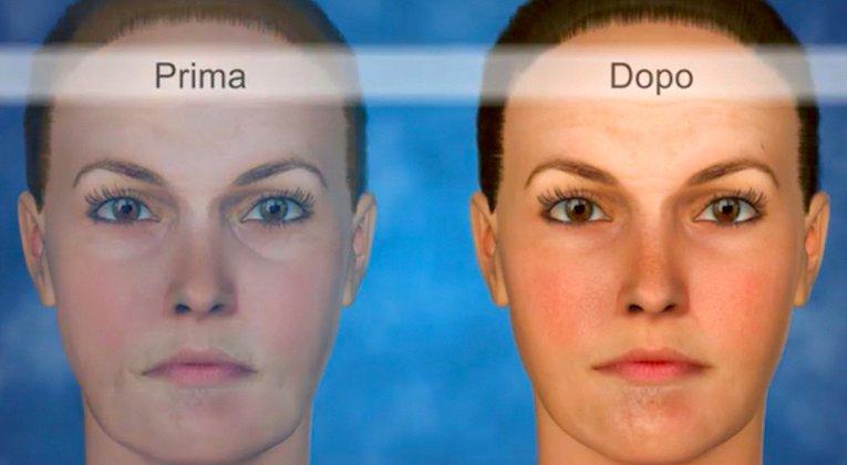lifting del terzo medio del volto prima e dopo