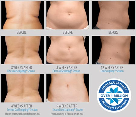 Criolipolisi – CoolSculpting 9